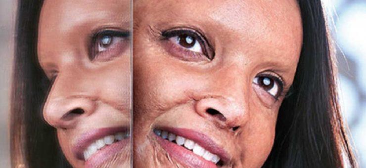 دیپیکا کی فلم ''چھپاک'' کا ٹریلر ہٹ ہو گیا