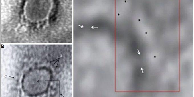 کرونا وائرس کا پہلا مائیکرو سکوپک امیج جاری کر دیا گیا