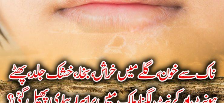 ناک سے خون، گلے میں خراش، بخار، خشک جلد، پھٹے ہونٹ اور کرنٹ لگنا، ملک میں پراسرار بیماری پھیل گئی؟